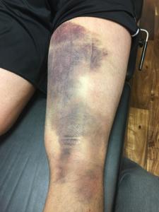 hamstring injury follow-up treatment