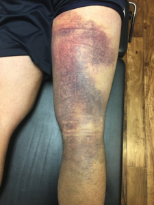 hamstring 9 days post-injury