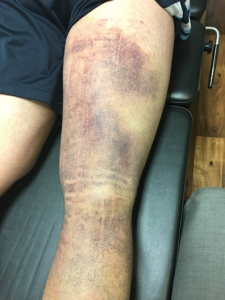 hamstring 11 days post-injury