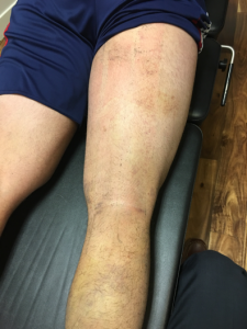 hamstring 17 days post-injury