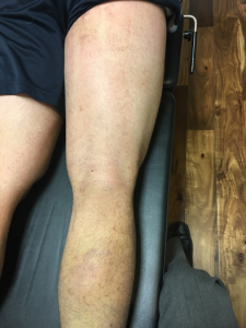 hamstring 19 days post-injury