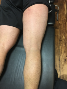 hamstring 30 days post-injury