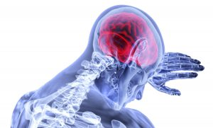 TBI Treatment in Alpharetta, GA