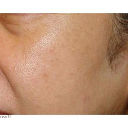 After photo of IPL limelight facial treatment in Calgary.