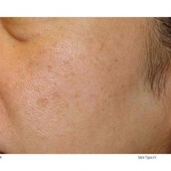 Before photo of an IPL limelight facial treatment in Calgary.
