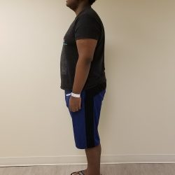Left side view of man standing after reshape
