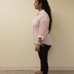 Side image of Amal before reshape procedure