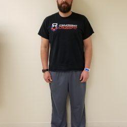 Front image of man standing after reshape procedure