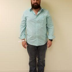 Front image of man standing before reshape procedure