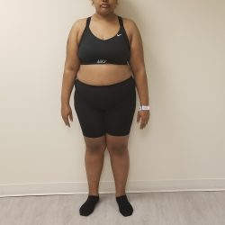 Front view image of woman standing after reshape procedure