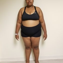 Front view of woman standing before reshape procedure