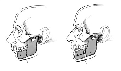 Pity, The facial skeleton agree, very
