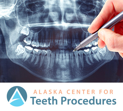 Teeth Procedures