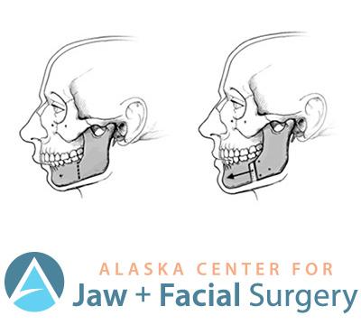 Jaw & Facial Surgery