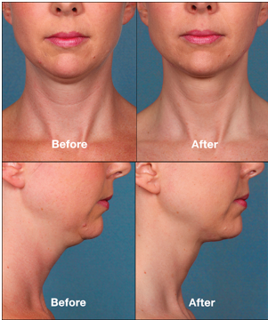 Allura Patient Results After Neck Contouring