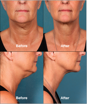Ways to avoid needing wrinkle treatment on your neck!