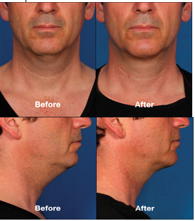 Male neck contouring for double chin.