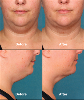 Neck contouring decreases unsightly double chins.