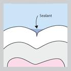 sealants1