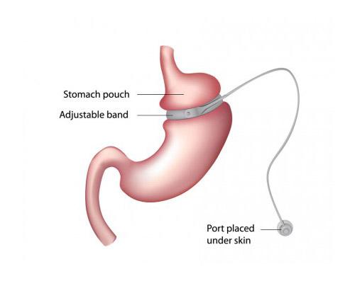 stomach4