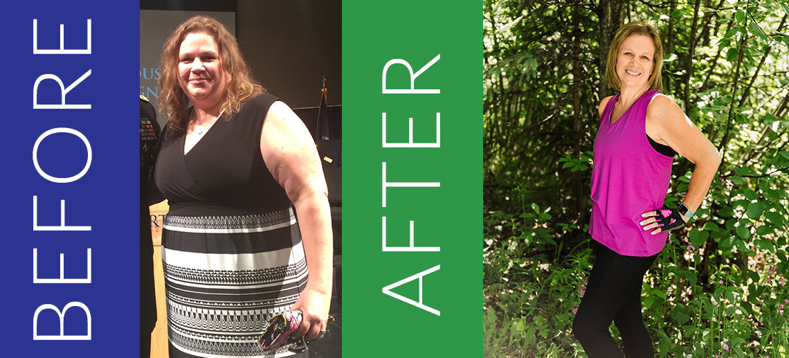 Jenifer B. before and after