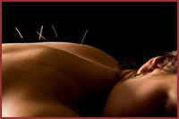 Our Littleton, CO acupuncture benefits the body.
