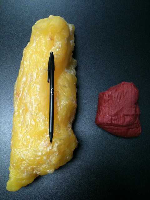1 Pound of Fat on the Left and One Pound of Muscle on the Right!