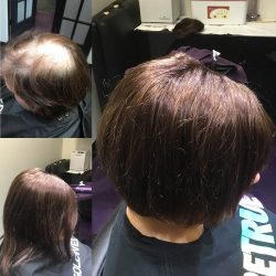 Non-surgical hair replacement - Avenue Hair Salon