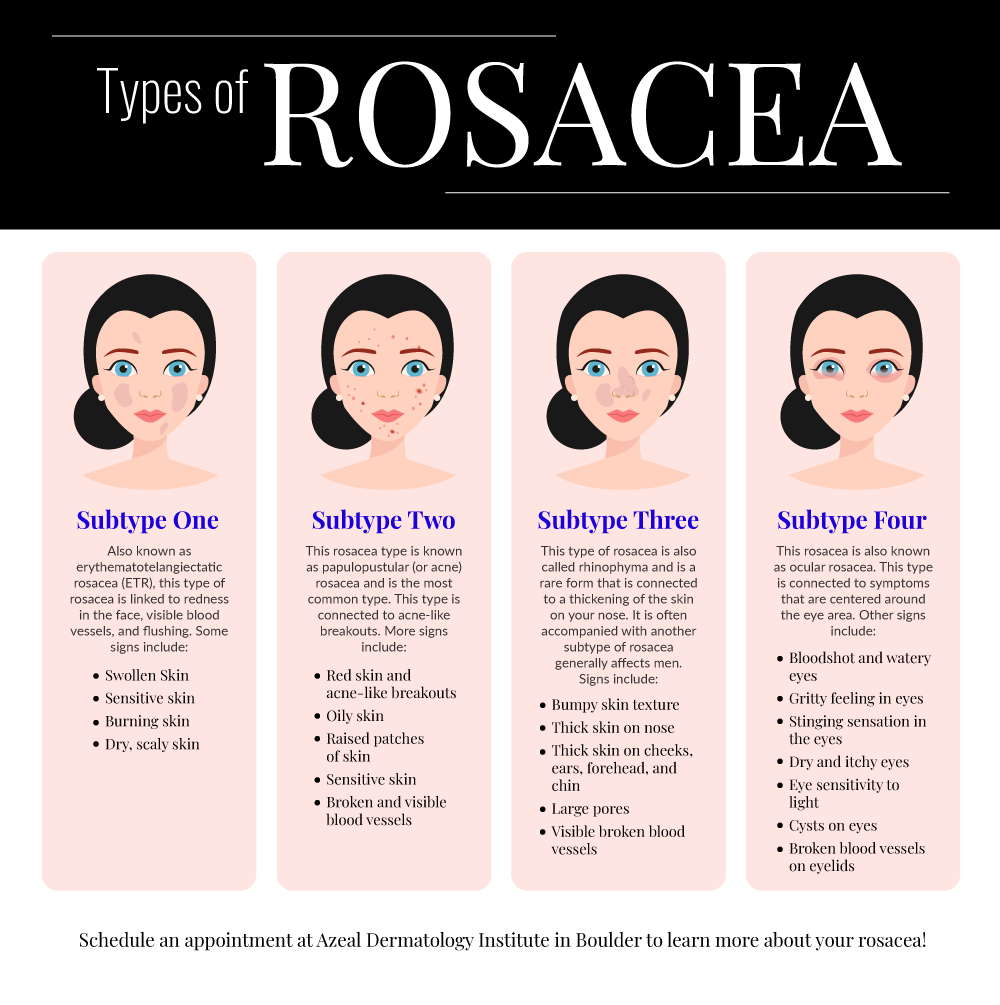 Rosacea Treatment General Dermatology Services In Boulder