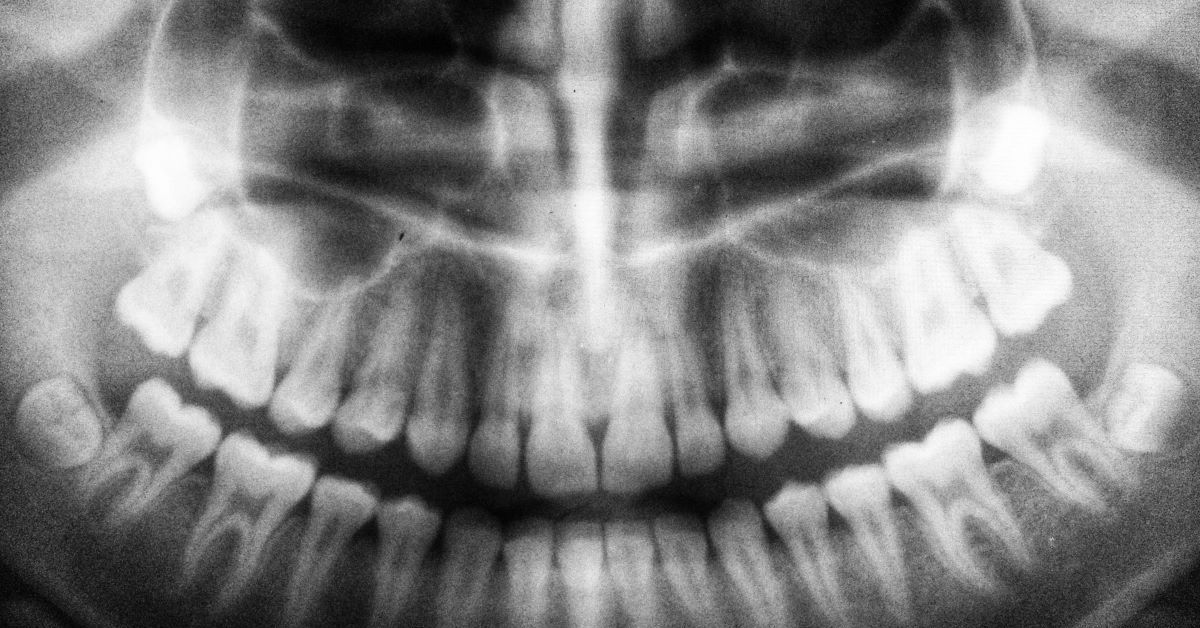 A generic X-ray photo of the human teeth and mouth. Photo by Umanoide on Unsplash.