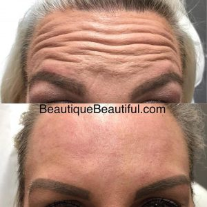 Injectables | Beautique Medical Anti-Aging