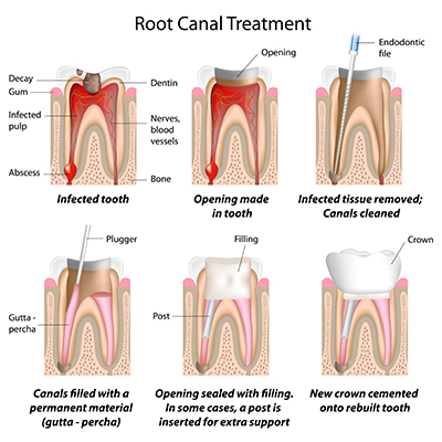 rootcanalspic