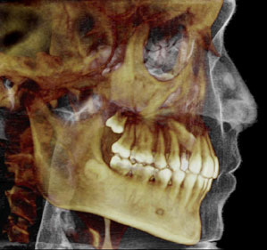 3d_dental_imaging