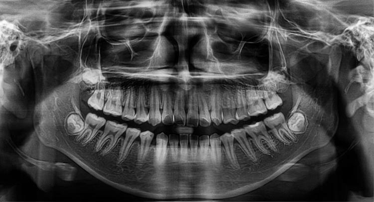 Dentistry Missoula Advanced Dental Care Mt Dental