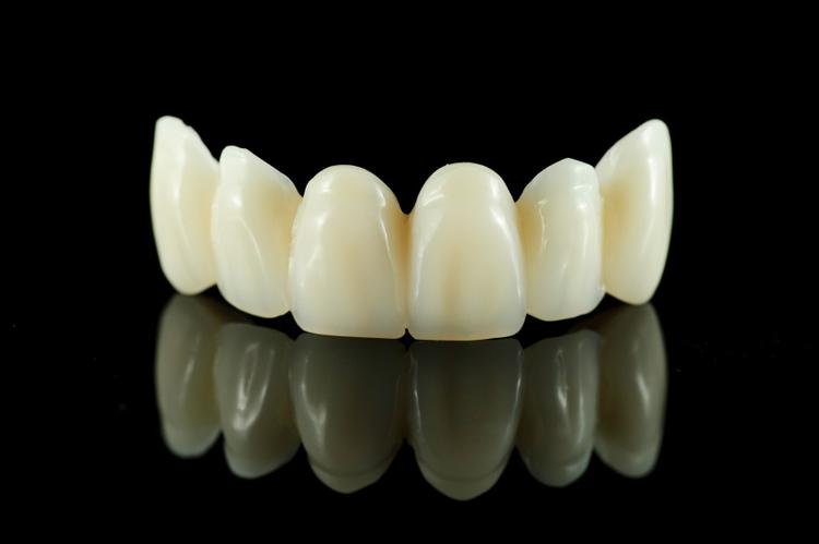 Dental crown missoula tooth crown mt dental crowns 59803 bridgesphoto solutioingenieria Image collections