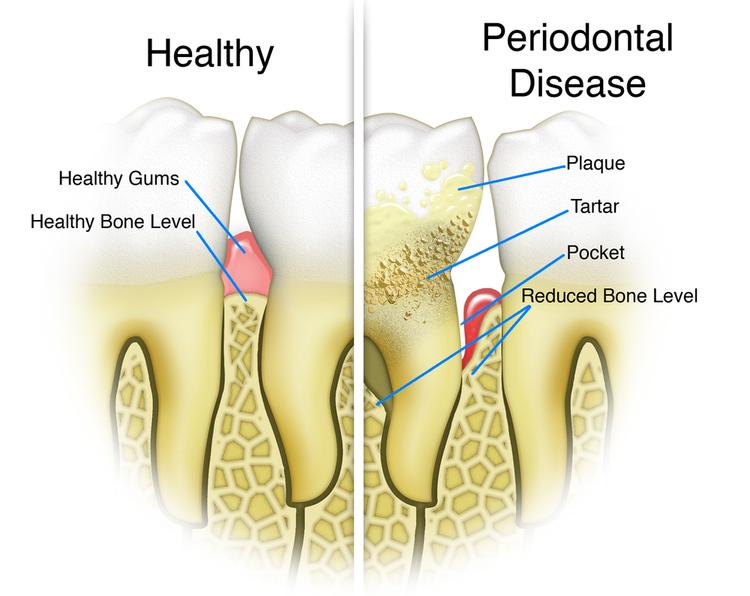 Gum Treatments- State-Of-The-Art Missoula Dentist   Bitterroot Dental