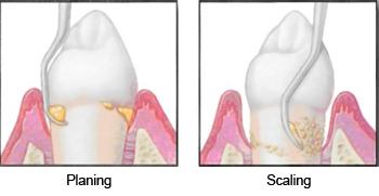 Gum Treatments- State-Of-The-Art Missoula Dentist | Bitterroot Dental