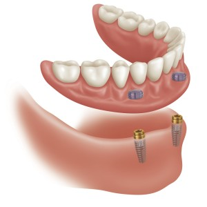 supported_dentures1