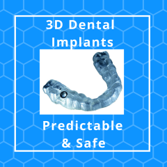 Your Family Dentist discusses surgical stents and Dental Implants
