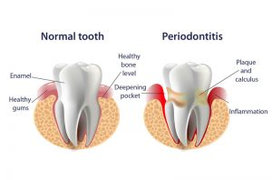 Comparison of normal tooth and periodontitis