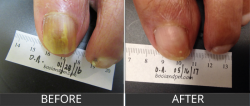 Toenail fungus repair in Tucson by Dr. Darin Alan Bocian.
