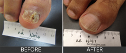 Close up of a Dr. Darin Alan Bocian repaired nail