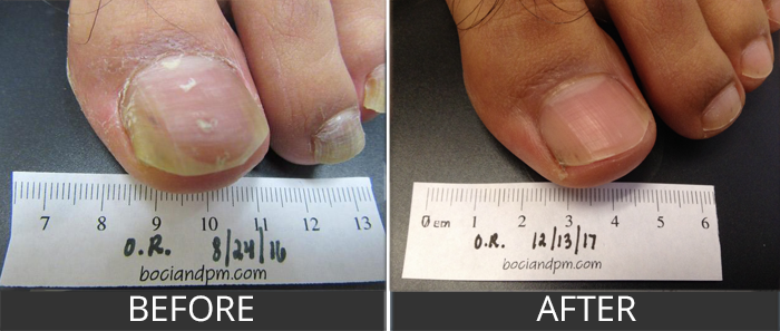 Before And After Laser Treatment For Nail Fungus Gallery