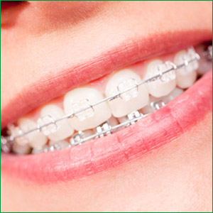 dental-ceramic-braces