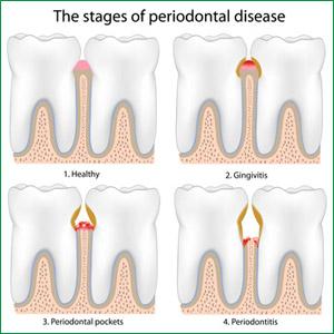 dental-periodontal-disease