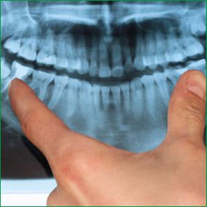 dental-wisdom-teeth
