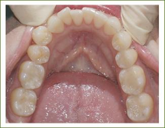 white-dental-fillings