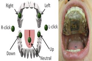 blog-tongue-drive-system