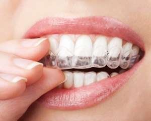 invisalign, santa monica, pacific palisades, beverly hills,  brentwood ca
