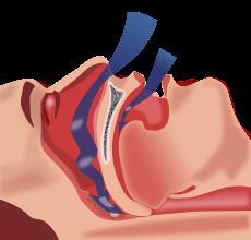 image-sleep-apnea-breathing-obstruction